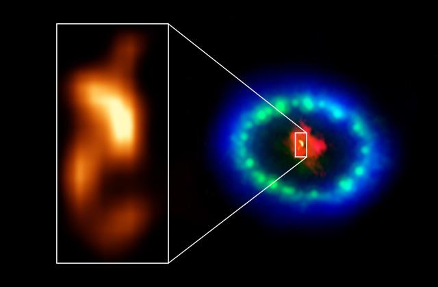 I resti della supernova SN 1987A visti da ALMA